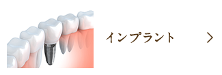 インプラント(口腔外科)