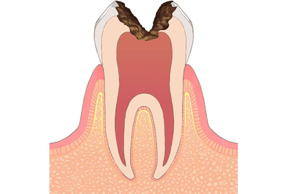 歯の神経の虫歯