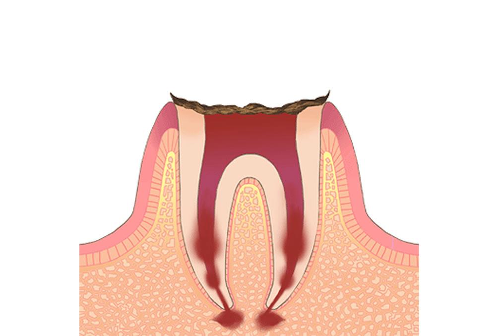 歯根だけが残っている状態の虫歯