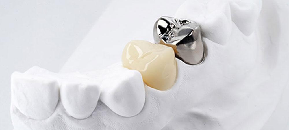 保険適用の白い歯