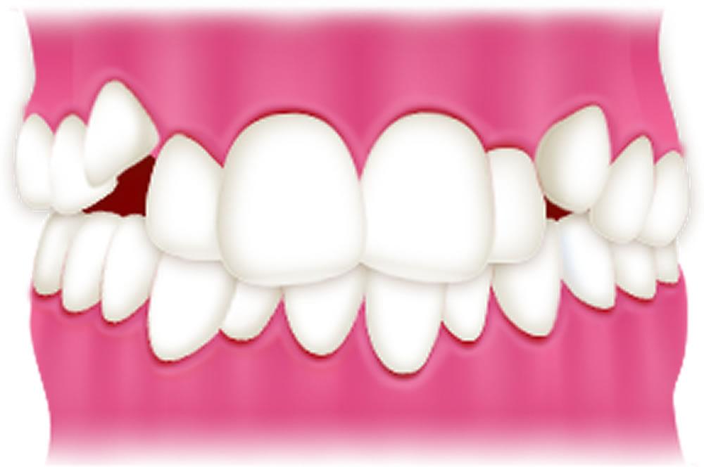 叢生(八重歯など)
