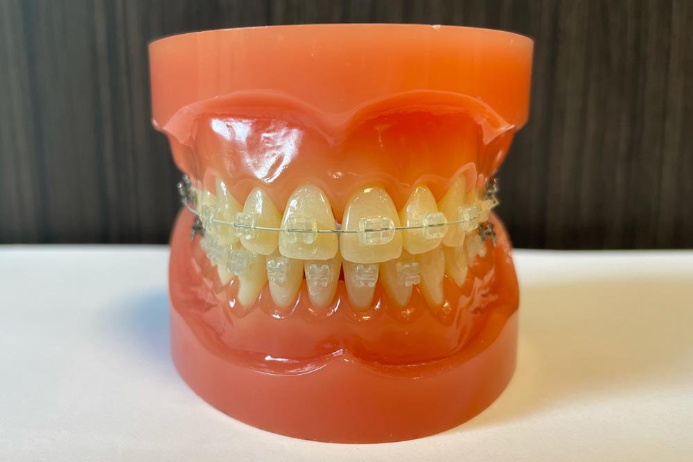 矯正専門歯科